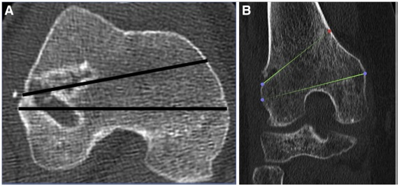 PUBLICACION ARTICULO – Evaluating for Tunnel Convergence in ACL. Reconstruction With Modified Lemaire Tenodesis: What Is The Best Tunnel Angle to Decrease Risk?